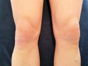 Een stel gezonde knieën waarmee je rustig kunt sporten.